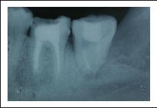 自體牙齒移植