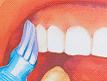 牙周病的預防與治療
