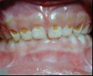 早發性齲齒在兒童是一種常見的牙科疾病