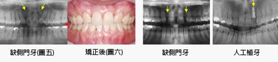 兒童牙醫-缺牙