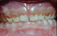 兒童牙醫-奶瓶型齲齒