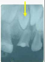 兒童牙醫-多生牙齒