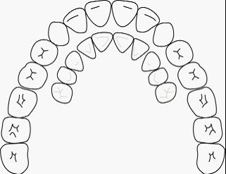 乳牙要換牙