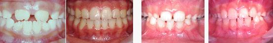 兒童牙醫-門牙