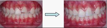 兒童牙醫-牙齒斷掉