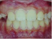 為什麼剛換的牙齒特別大