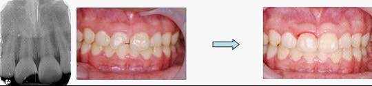 兒童牙科牙齒斷裂