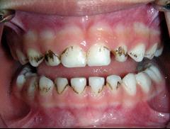 兒童牙醫-牙齒變黑