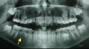 兒童牙醫-先天性缺牙-缺一顆牙