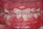 兒童牙科-牙齦發炎