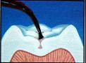 兒童牙醫-抽神經