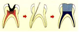 乳牙齒髓治療