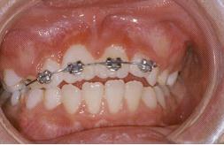 兒童牙醫-門牙還沒長出來